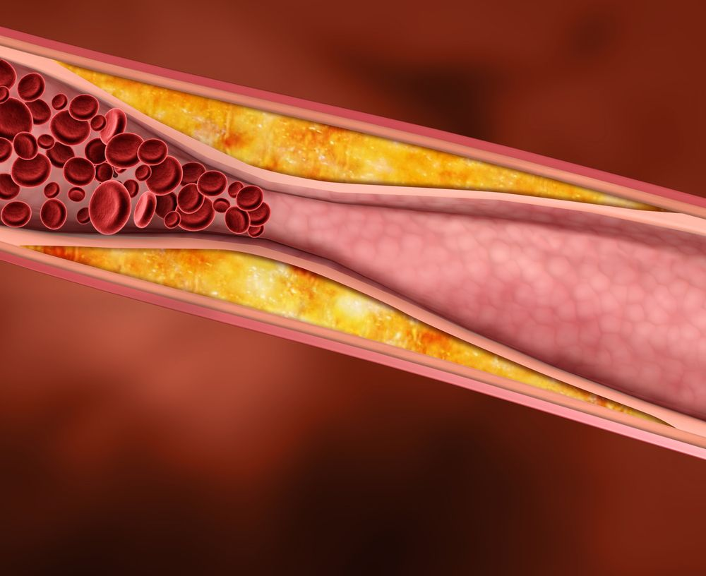 The Truth About Cholesterol - ActiveBeat