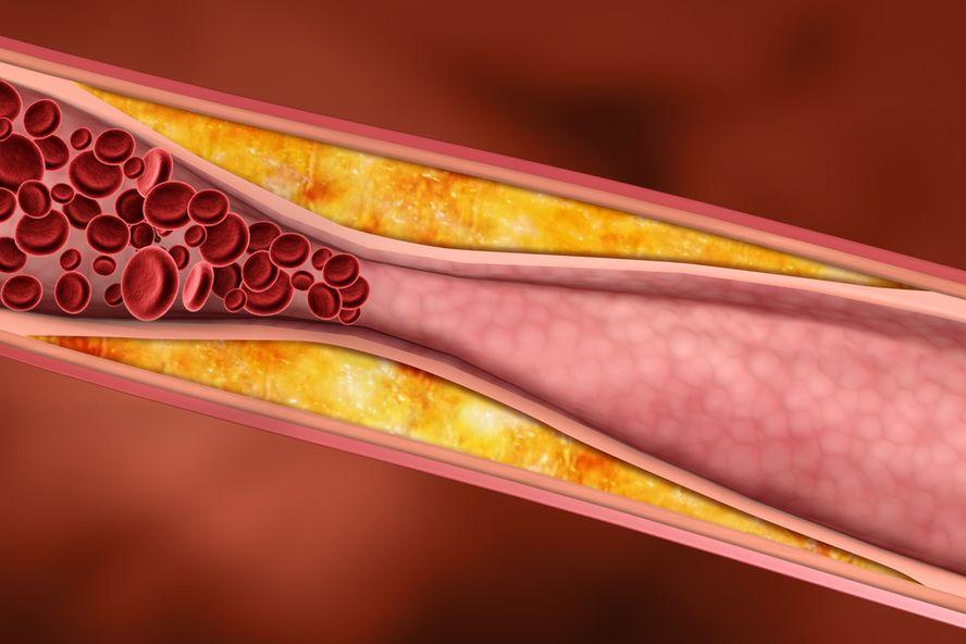 6 causes d'hypercholestérolémie