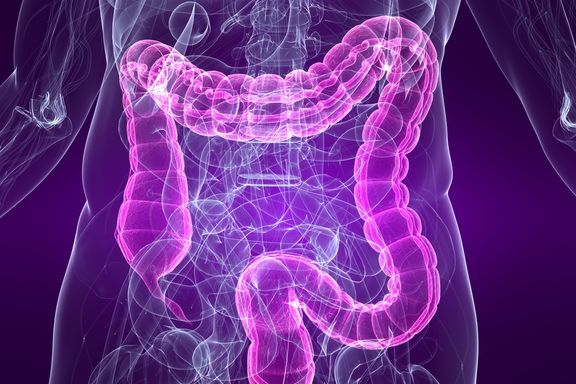 IBS Symptoms And Inflammatory Bowel Disease Might Overlap