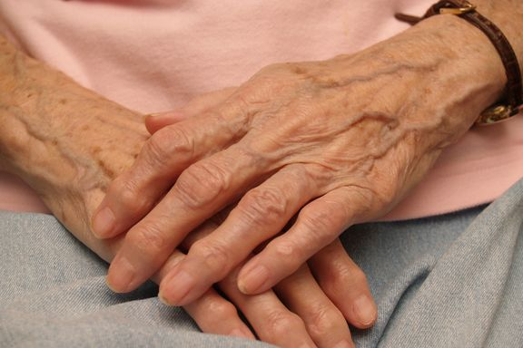 Study Says Rheumatoid Arthritis Linked To Blood Clots: Overall Risk Is Small But Present