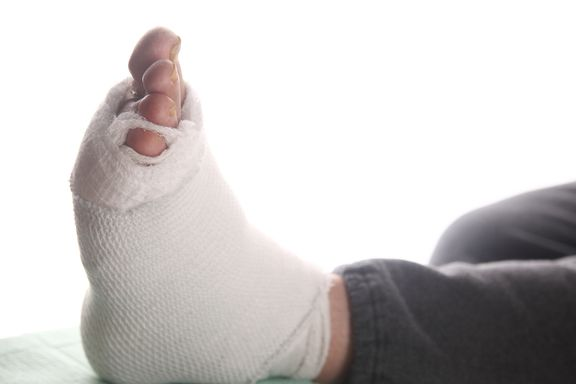New Risks For Diabetics: Foot Ulcers Connected With Heart Attacks, Stoke, and Death