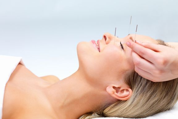 New Study Finds Acupuncture Effective at Treating Headaches, Back Pain