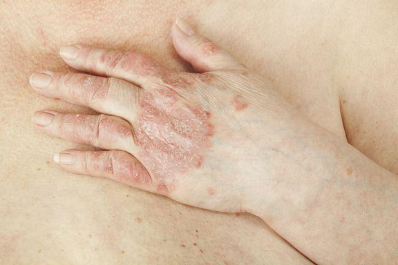 10 Remèdes Maison contre le Psoriasis