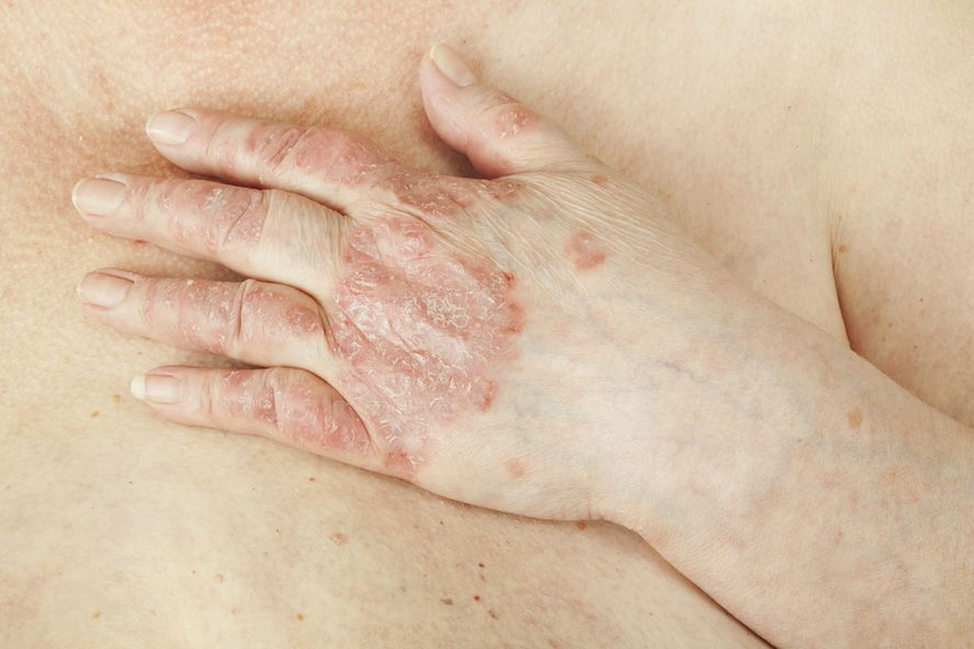 Study Finds Increased Risk Of Diabetes In Psoriasis Patients