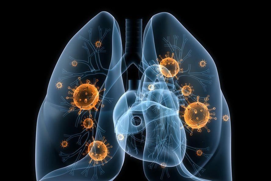 Les 10 symptômes les plus courants de pneumonie