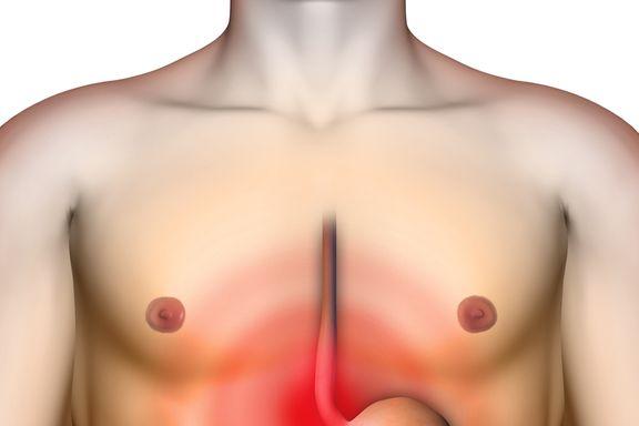 10 Consejos Efectivos para Evitar la Temida Acidez Estomacal