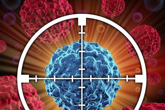 Los Signos y Síntomas del Cáncer de Páncreas