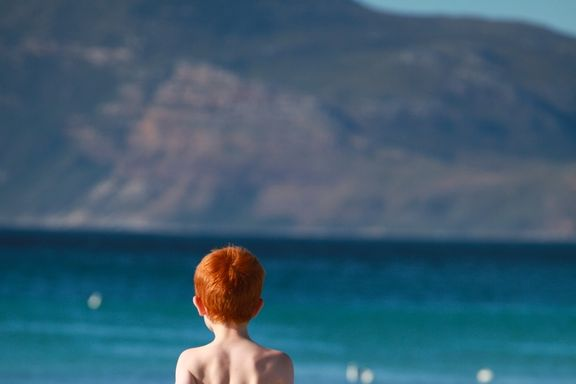 Red Heads May be Genetically Predisposed to Melanoma
