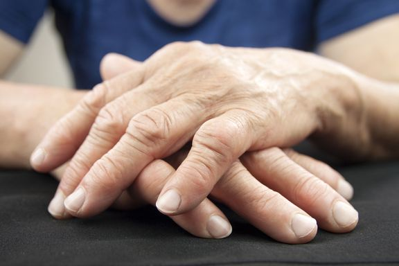 Symptoms of Rheumatoid Arthritis: Do You Have Rheumatoid Arthritis?