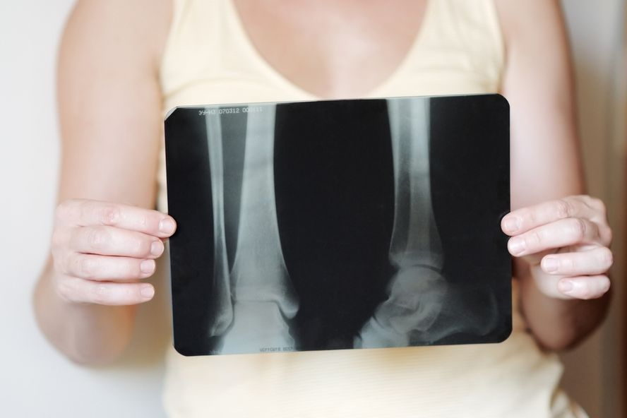 10 facteurs de risque d'ostéoporose
