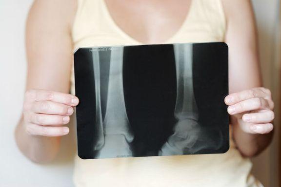 Vitamin D and Calcium Offer Little Benefits For Elderly Bones