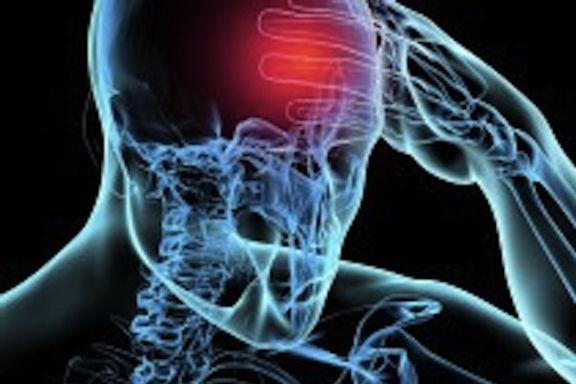Les 10 symptômes communs d'un AVC