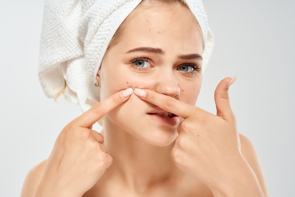 Best Ways to Prevent Acne: Avoid Breakouts With These Tips!