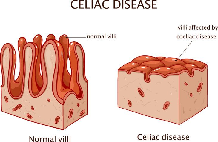Symptoms of Celiac Disease: Do You Have It?