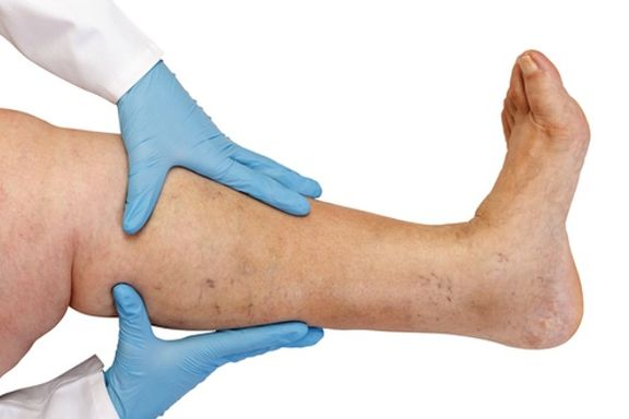 10 Ways to Eliminate Varicose Veins