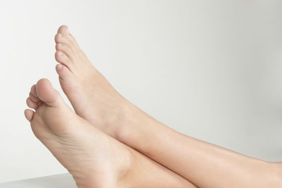 10 Wege, wie man Krampfadern entfernen kann