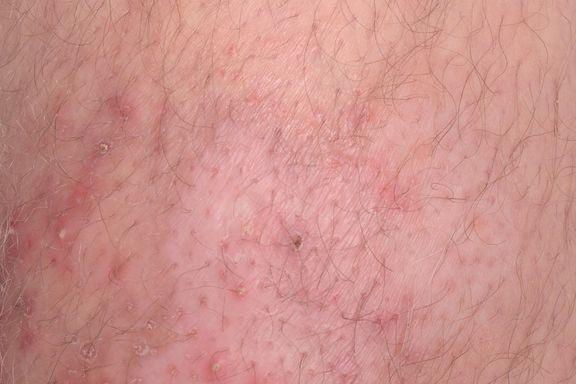 10 Hinweise auf eine Blutinfektion