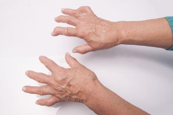 10 Rimedi Naturali per l'Artrite Reumatoide