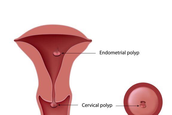 10 Warnsignale bei Gebärmutterhalskrebs