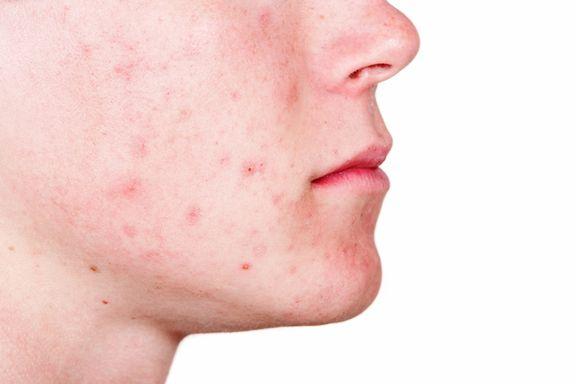 10 tratamientos caseros eficaces para el acné