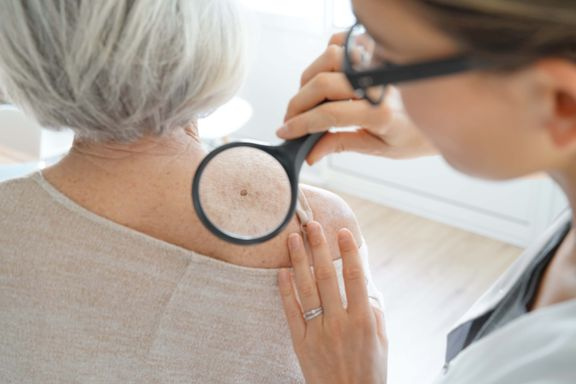 Signs Your Mole May Be Cancerous