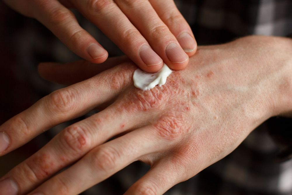 Effective Tips for Dealing with Psoriasis - ActiveBeat