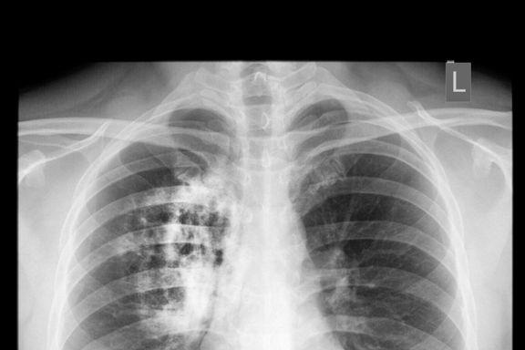 12 medizinische Ursachen für Atemnot