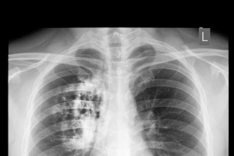 Doce enfermedades que dificultan la respiración