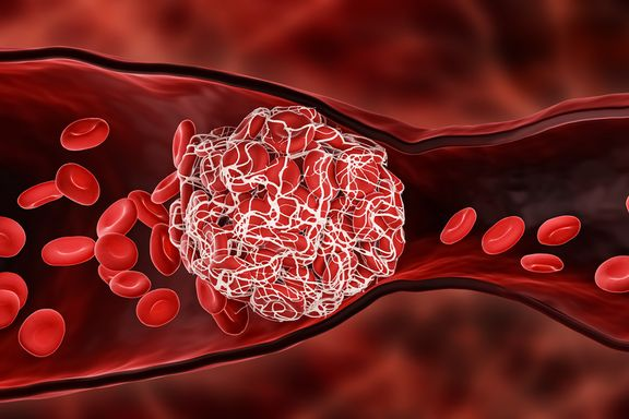 Häufige Krankheitszeichen und Symptome eines Blutgerinnsels