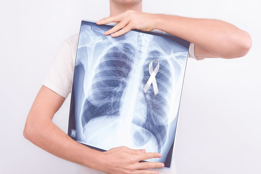 Cáncer Pulmonar: Signos y Síntomas Tempranos