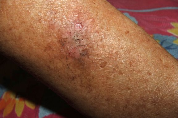 I 10 Sintomi Più Comuni del Lupus