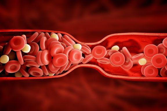 Señales y síntomas comunes de un coágulo de sangre