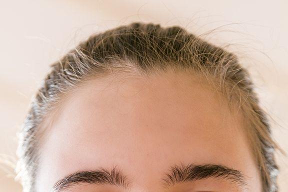 I 7 Sintomi Identificativi dell'Acne Rosacea