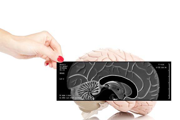 Die 10-häufigsten Gehirntumore