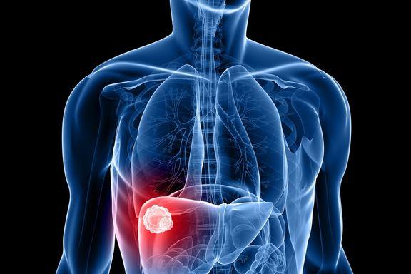 Die Symptome und Hauptursachen von Leberkrebs