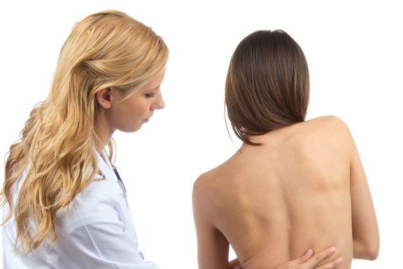Diagnosticando Escoliosis: Síntomas y Tratamientos Comunes
