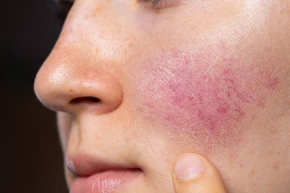 Common Symptoms of Rosacea