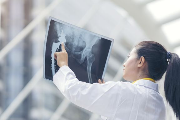 Common Signs, Symptoms, and Treatments For Bone Cancer