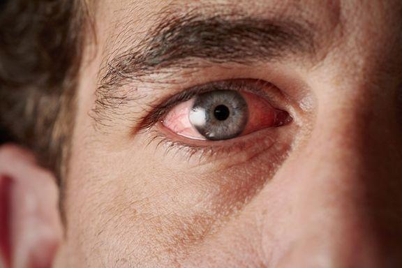 9 Symptômes Irritants et Embêtants liés à la Conjonctivite
