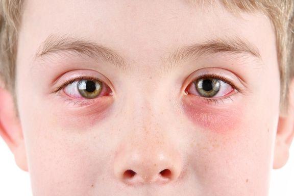 9 Remedios Caseros para la Conjuntivitis