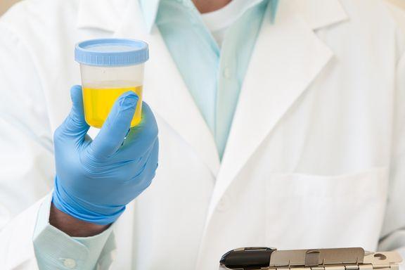 7 faits brûlants sur les infections urinaires chez les femmes