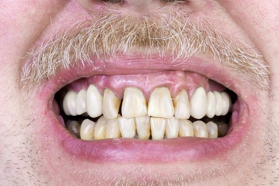 10 Señales de que Debe Visitar a su Dentista