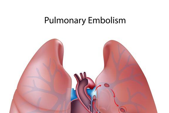 Consejos para vivir con Hipertensión Arterial Pulmonar