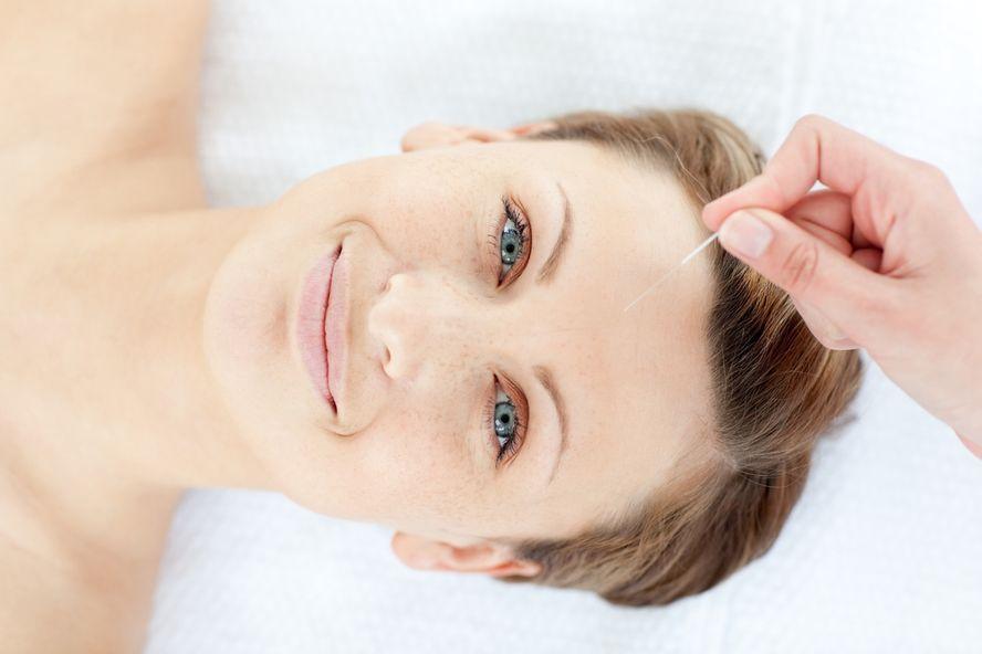 8 bienfaits de l'acupuncture pour les femmes ménopausées