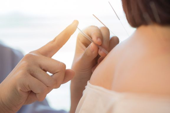 Acupuncture Benefits for Menopausal Women