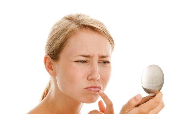 6 Gründe, warum Sie Lippenherpes bekommen