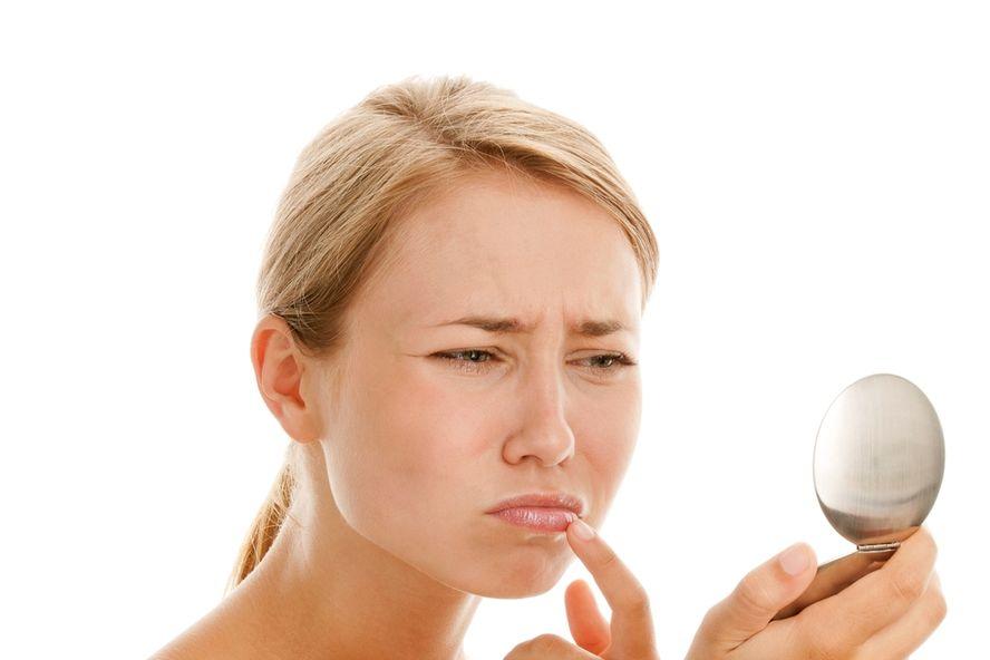 Seis factores desencadenantes de los herpes labiales