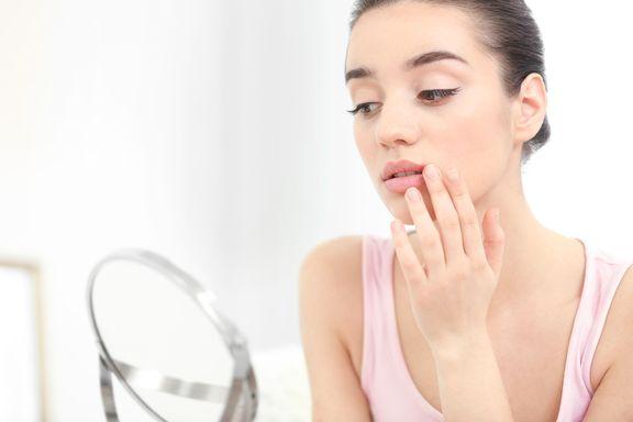 Beste natürliche & lindernde Mittel gegen Lippenherpes