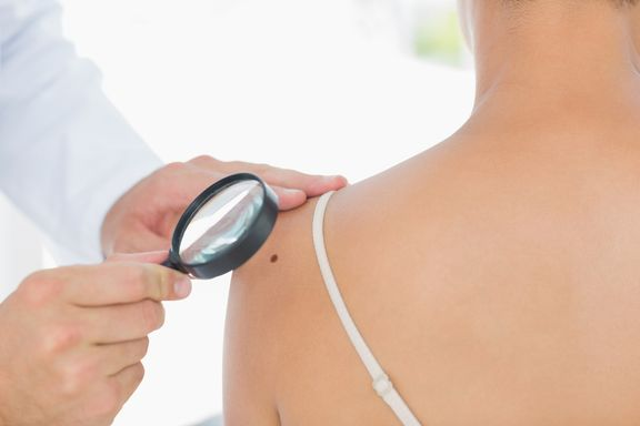 Signs and Symptoms of Melanoma