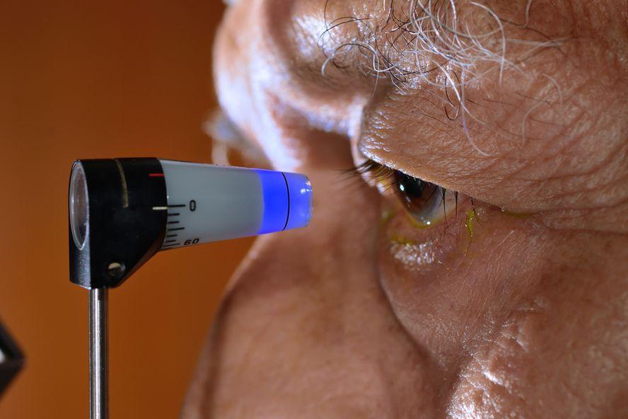 Gardez à l'œil ces 8 signes révélateurs d'un glaucome